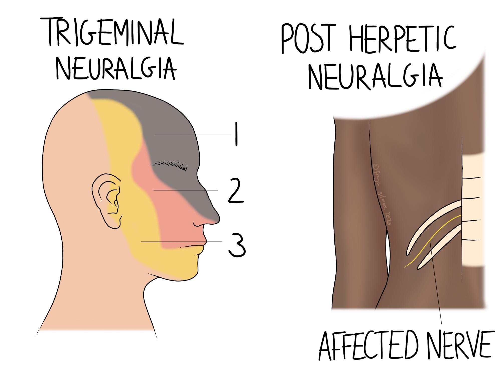 Two types of neuralgia